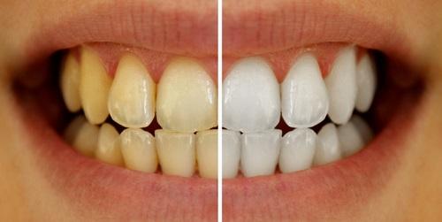 De qué color son tus dientes ?